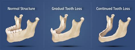 Gum Disease Causes Tooth and Bone Loss in Fort Smith, AR