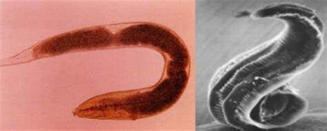 Are Parasites Making You Fat? or just Slowly Killing You
