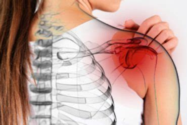 What You Need to Know About Fibromyalgia Burning Sensations