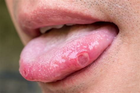 Pictures: Signs You're Low on Vitamin B12